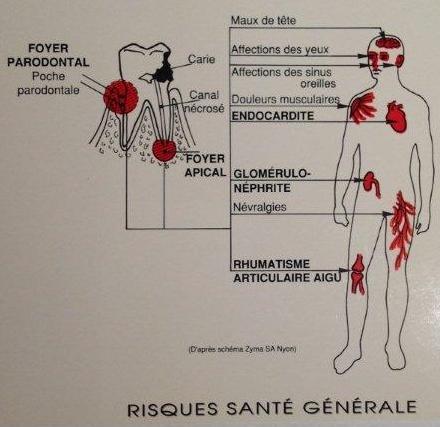 Hygiène dentaire - Espace Santé Bellevue